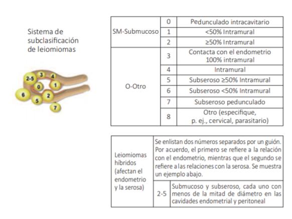 Clasificación de miomas